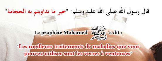 slide_hadith_hijama